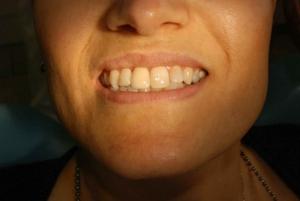 Implantologia Dentale Milano - caso clinico inizio fine