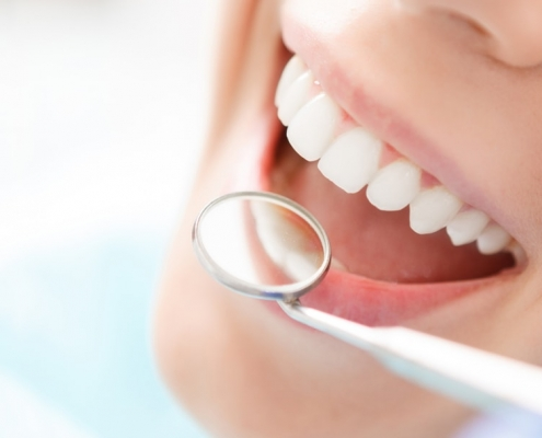 costo otturazione dente