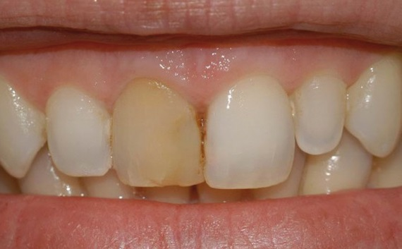 denti devitalizzati neri gialli