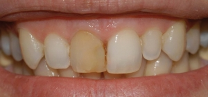 denti devitalizzati scuri