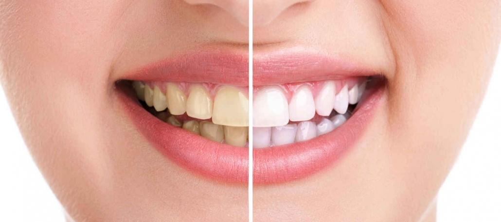 rimedi naturali per sbiancare i denti