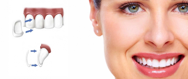 Faccette Dentali Milano